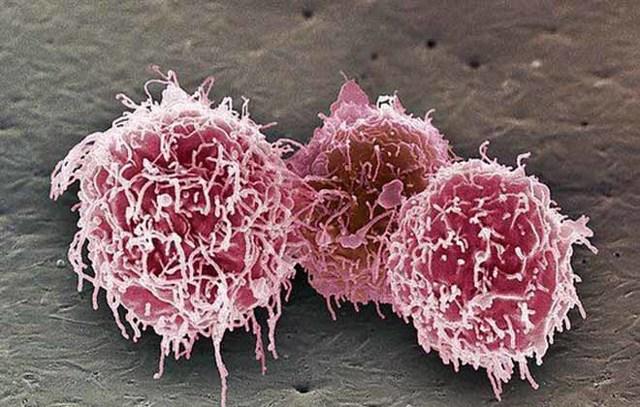 Понижены лимфоциты в крови: что это значит у взрослых мужчин, женщин, причины лимфопении