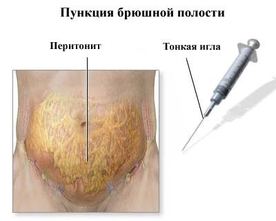 Местный перитонит: что это такое, классификация, лечение при аппендиците
