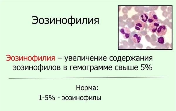Повышение эозинофилов в крови у взрослого: причины эозинофилии у взрослых мужчин и женщин