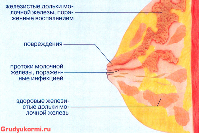 Агалактия, отсутствия грудного молока после родов: причины, симптомы, лечение у кормящей