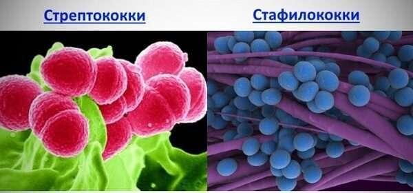 Чем отличается стафилококк и золотистый стафилококк?
