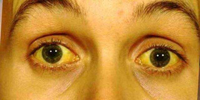 Паренхиматозная желтуха: что это такое, причины, механизмы развития, симптомы, биохимия