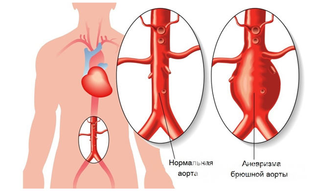Аневризма брюшной аорты: симптомы, УЗИ, диагностика, классификация, лечение, операция