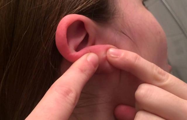 Маленькая горошинка под мочкой уха - что это?
