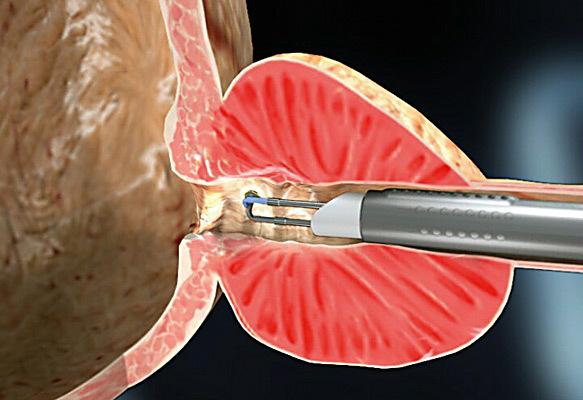 Аденома простаты – симптомы, причины развития, методы диагностики и лечения аденомы предстательной железы