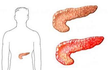 Атрофия поджелудочной железы: причины, симптомы, диагностика, лечение, профилактика