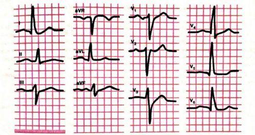 Гипертрофия правого желудочка: что это значит на ЭКГ, причины, симптомы, чем опасна