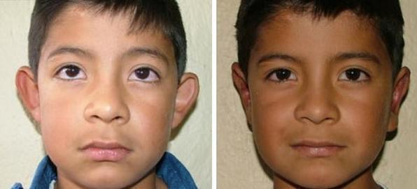 Большие, лопоухие уши – операция, исправление формы ушей, отопластика ушей