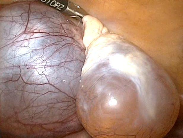 Параовариальная киста яичника: что это, УЗИ признаки, лечение, прогноз