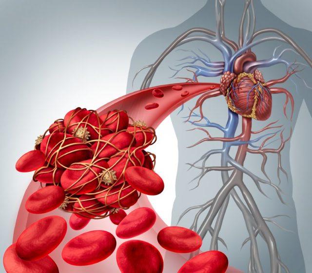 Алкогольная кардиомиопатия: что это такое у взрослых, причина смерти, рекомендации