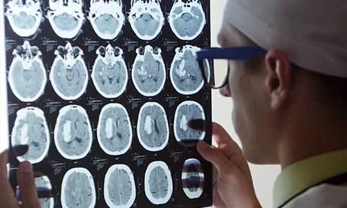 Снимок показывает гипертрофию, а МРТ без патологий, кому верить?