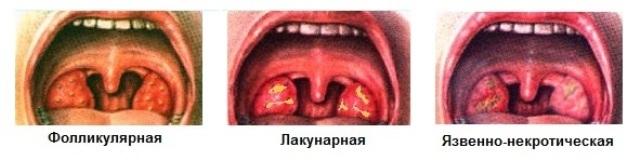 Язвенно-пленчатая ангина: симптомы, диагностика, лечение, сколько длится