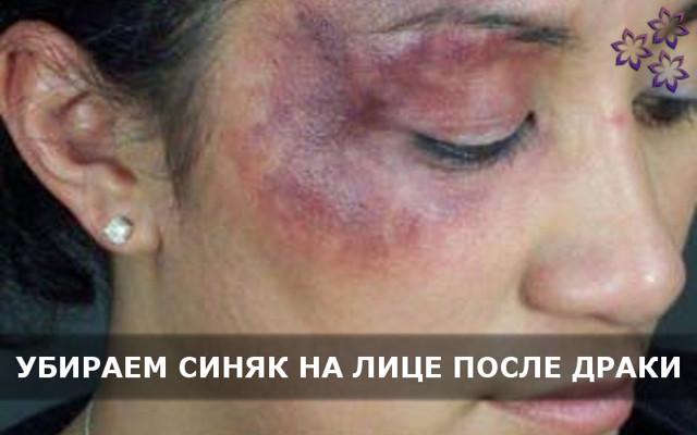 Синяк на лице от удара: как избавиться быстро в домашних условиях от гематомы