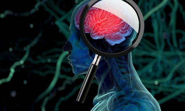Глиобластома головного мозга: причины, стадии и степени, симптомы и лечение