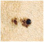 Меланомоопасные невусы: какие, как долго, как часто перерождаются родинки в меланому, риски