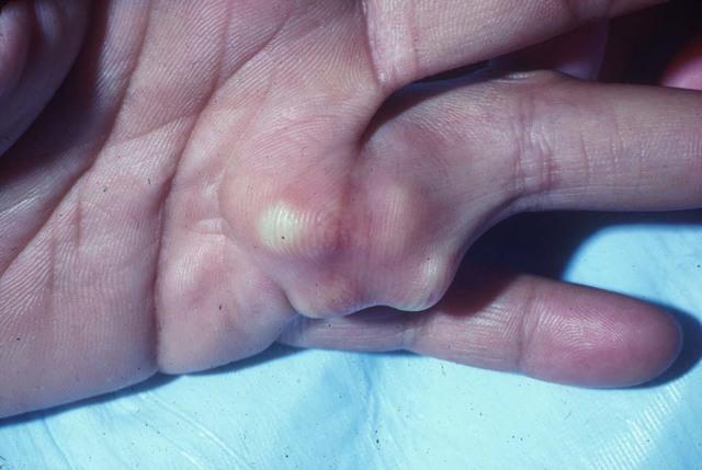 Хондрома гортани: что это такое, причины, симптомы, лечение, профилактика, риски