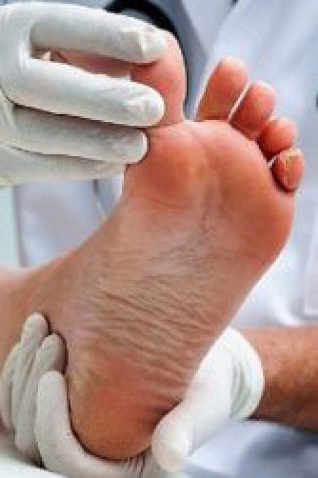 Слоновость нижних конечностей, ног: причины, симптомы, лечение