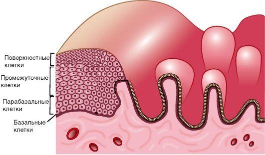 Атипическая гиперплазия эндометрия матки: что это такое, симптомы адонематоза