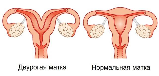 Двурогая матка при беременности в левом, в правом роге, что это такое, плохо ли это