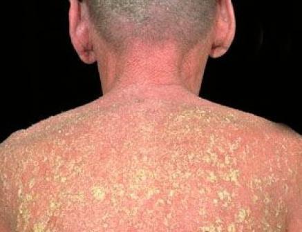 Эксфолиативный дерматит: симптомы и лечение эксфолиативного дерматита у взрослых