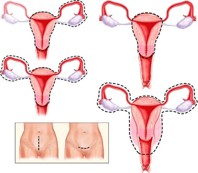 Аденокарцинома матки: симптомы, причины, лечение, прогноз на жизнь, гистология