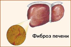 Фиброз печени: что это такое, 1, 2, 3, 4 степени, прогноз, сколько живут, лечение
