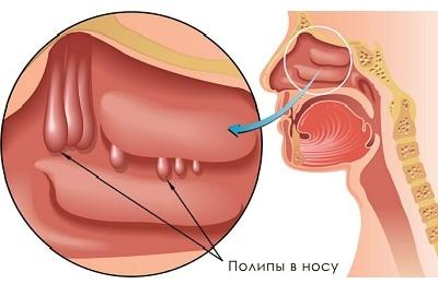 Грибковый гайморит: симптомы, диагностика, лечение, препараты, операция у детей и взрослых