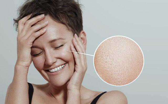Жирная кожа: что делать, правила ухода, домашние маски для жирной кожи лица