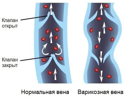 Флеболит: что это такое, симптомы, диагностика, лечение, профилактика, риски