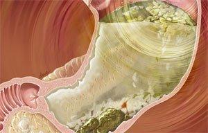 Гастропарез желудка: причины, симптомы, лечение, диагностика, профилактика