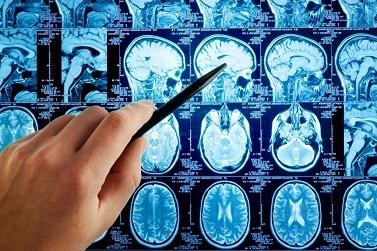 Менингиома головного мозга: симптомы, лечение после операции, прогноз для жизни