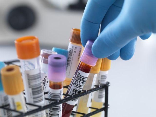 Тромбофилия: симптомы и лечение, анализы, тромбофилия при беременности.