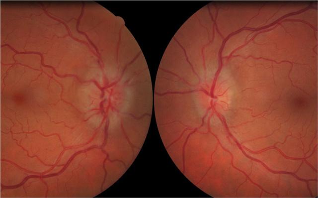 Неврит зрительного нерва: причины, диагностика, МРТ, симптомы и лечение воспаления