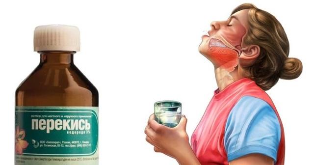 Что делать, если мучает неприятный запах изо рта?