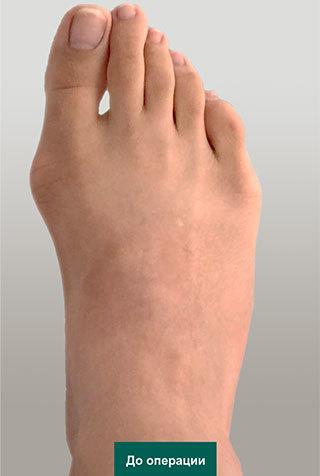 Вальгусная деформация, шишка большого пальца стопы: рентген, степени, лечение, операция