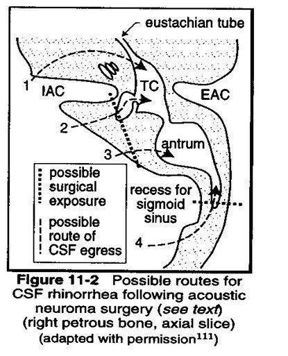 Невринома, шваннома у детей: симптомы и лечение, операция, прогноз после удаления