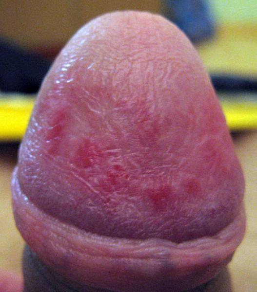 Высыпания, сыпь на гениталиях, пенисе у мальчика, покраснение коника полового члена