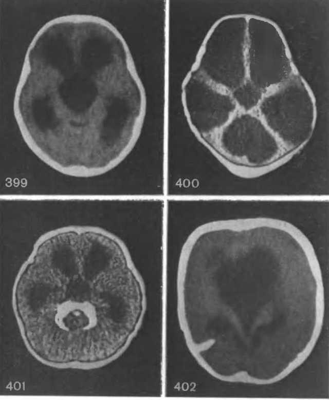 Гидроцефалия головного мозга: виды, классификация, МРТ, рентген, томография, симптомы, лечение