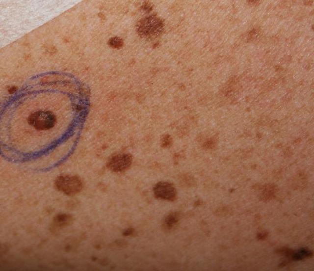 Пограничный пигментный невус: что это такое у ребенка и взрослого, симптомы, лечение, удаление
