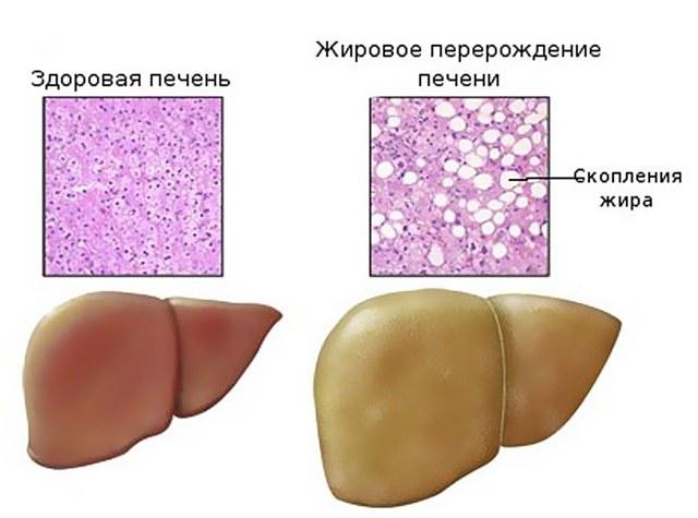 Гепатоз: симптомы и лечение, народное лечение гепатоза, диета при жировом гепатозе печени