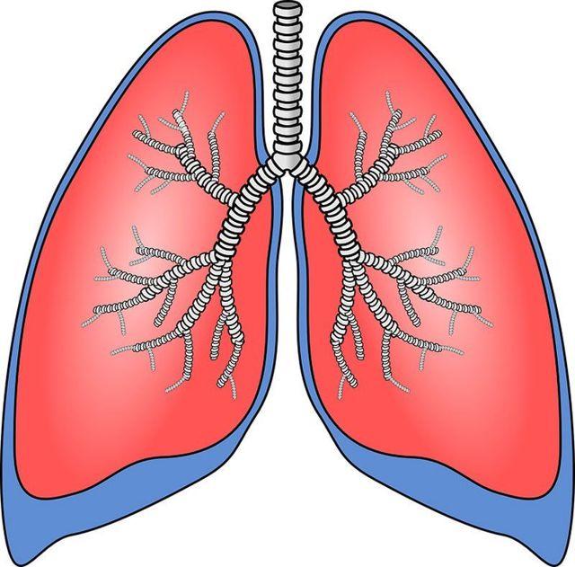 Цирротический туберкулез легких: что это, причины, симптомы, лечение, рентген