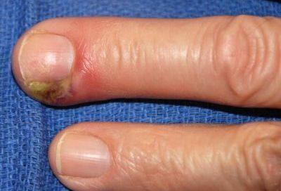 Карбункул почки: причины, симптомы, лечение, клинические рекомендации, УЗИ, МРТ