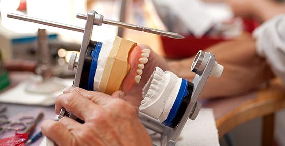 Аллергия на зубной протез в стоматологии, протез в полости рта: симптомы и лечение