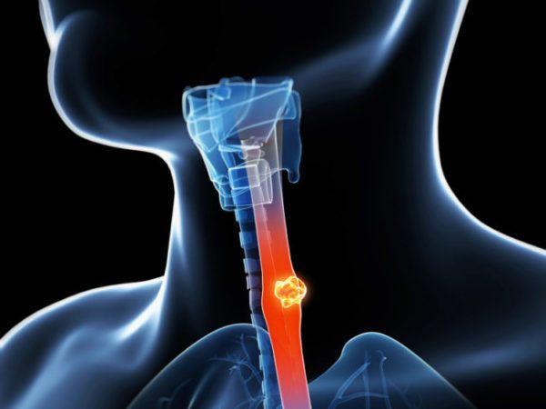 Застряла в горле, в пищеводе рыбная кость: симптомы, что делать, переварится ли