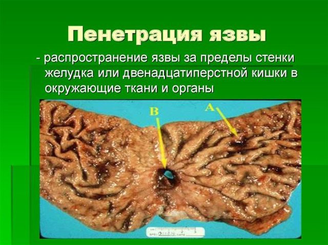 Пенетрация язвы желудка: что это такое, виды, особенности, симптомы, лечение