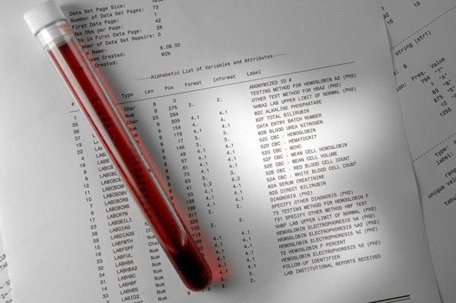 На что указывает сильное повышение антител при анализе крови ИФА?