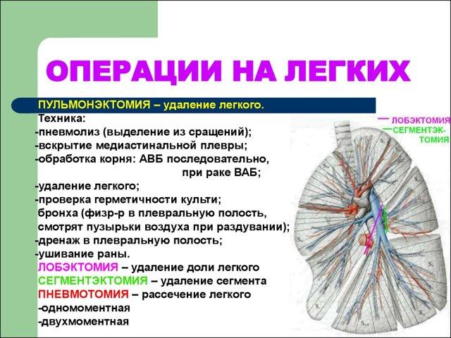 Центральный рак легкого: причины, симптомы, рентген, диагностика, лечение