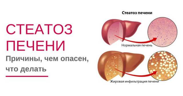 Стеатоз печени: что это такое, симптомы и препараты для лечения 1 и 2 степени