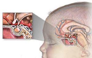 Краниофарингиома головного мозга у детей: симптомы и лечение, прогноз после операции