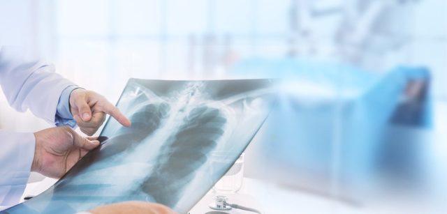 Интерстициальная пневмония: что это такое, причины, симптомы, диагностика на КТ, лечение